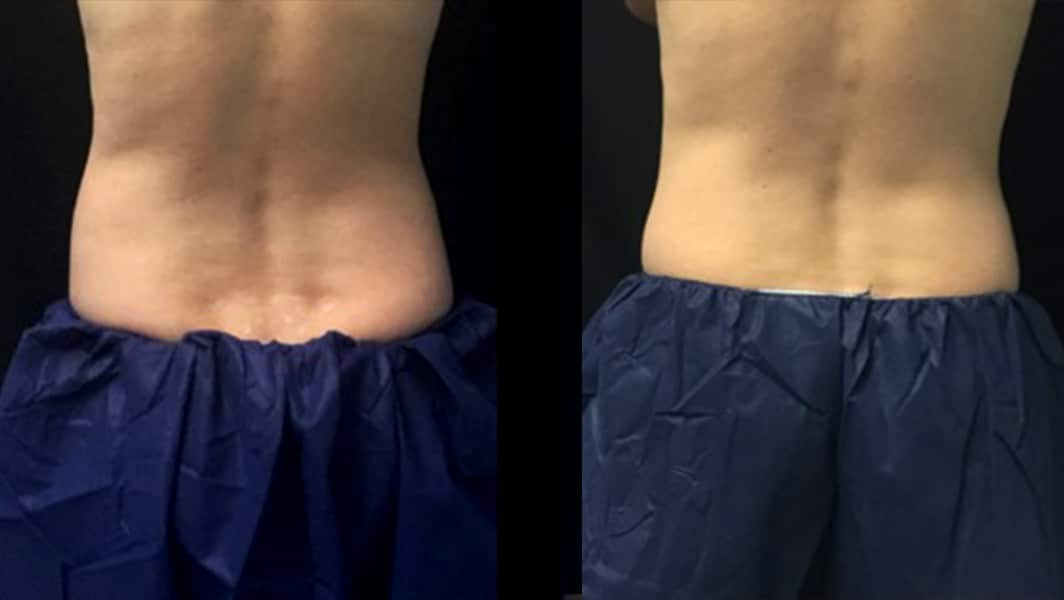 8 Weeks 1 Treatment Coolsculpting Back View Knott Street Dermatology