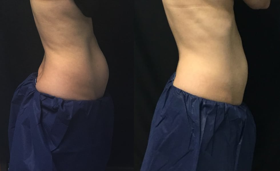 8 Weeks 1 Treatment Coolsculpting Side View Knott Street Dermatology