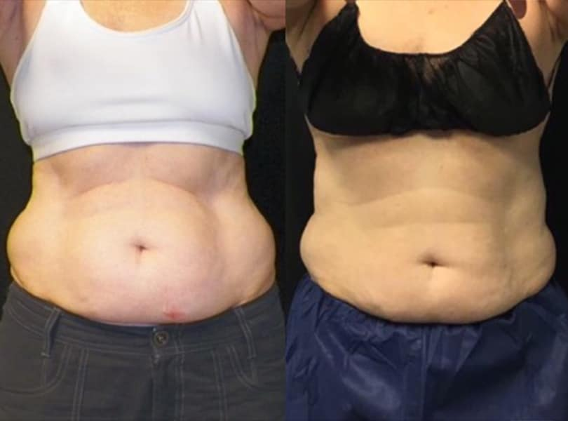 4 Months 1 Session Coolsculpting Abs Knott Street Dermatology