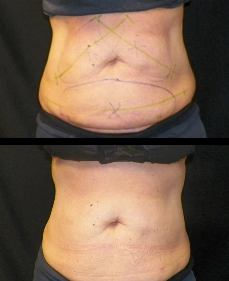 4 Weeks 1 Treatment Coolsculpting Abs Front View Knott Street Dermatology