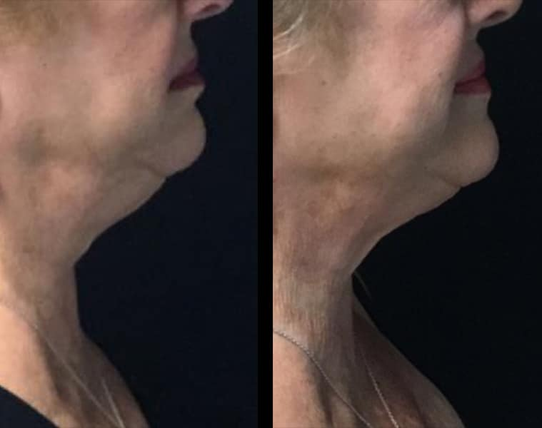 8 Weeks After Surgery Coolsculpting Face Side View Knott Street Dermatology
