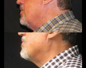 8 Weeks After 1 Session Coolsculpting Man's Face Knott Street Dermatology