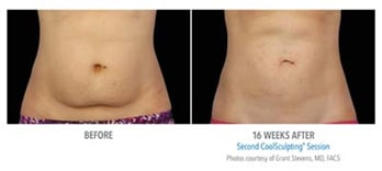 Female Coolsculpting Before & After | Knott Street Dermatology | Body Contouring | Portland Oregon