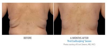 Male Before & After Coolsculpting | Knott Street Dermatology | Body Contouring | Portland Oregon