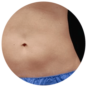 Body Result After Coolsculpting Treatment | Knott Street Dermatology | Skin Treatment | Portland Oregon