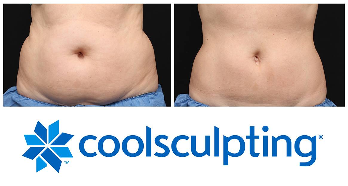 Coolsculpting Before & After Knott Street Dermatology