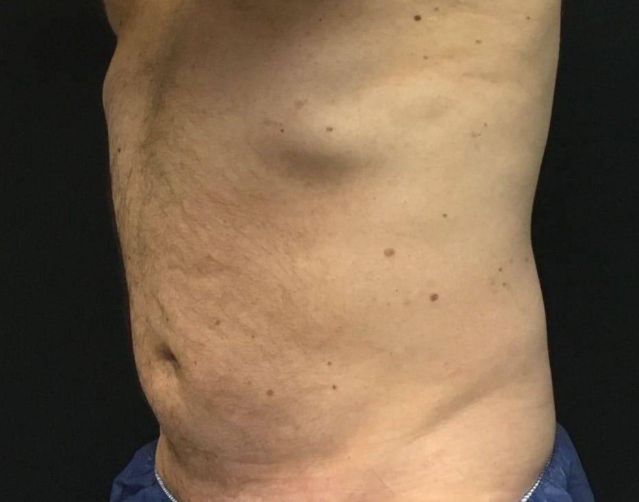Pre CS abdomen crp