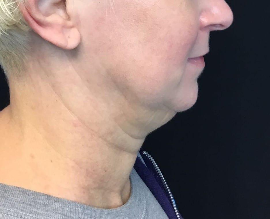 Pre chin - cropped