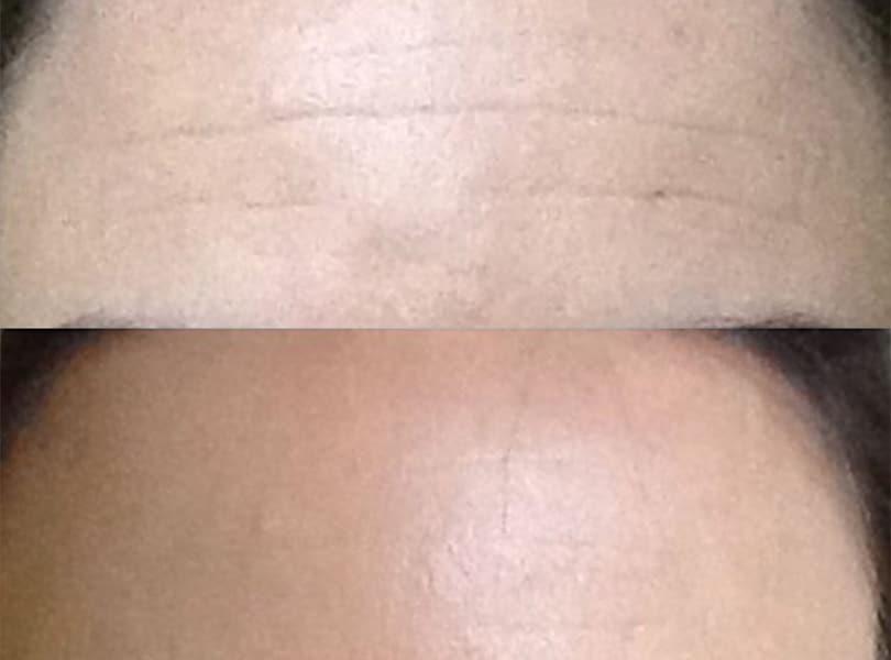 1 week after botox forehead   Knott Street Dermatology   Skin Care Center   Portland Oregon