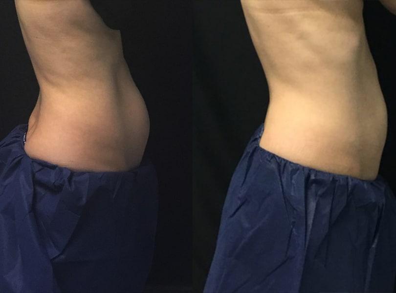 2-8 weeks 1 treatment abs flanks   Knott Street Dermatology   Skin Care Center   Portland Oregon