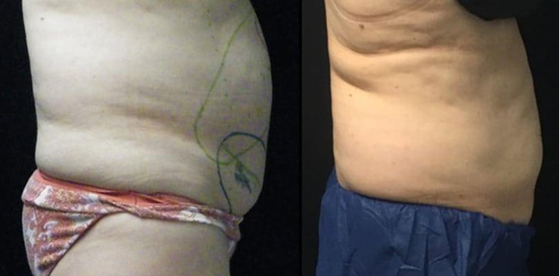 3.3 after 1st treatment abdomen   Knott Street Dermatology   Skin Care Center   Portland Oregon