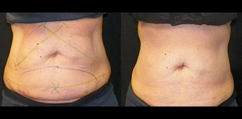 4.4 after 1st treatment on abs   Knott Street Dermatology   Skin Care Center   Portland Oregon