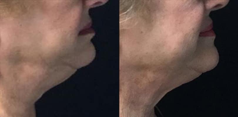 5 after 8 weeks after submental surgery   Knott Street Dermatology   Skin Care Center   Portland Oregon