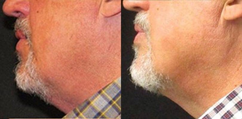8 weeks after 1 session submental   Knott Street Dermatology   Skin Care Center   Portland Oregon