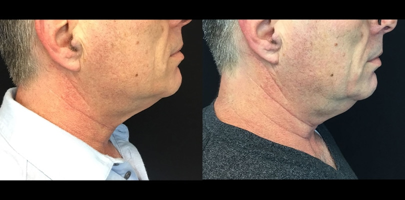 post 3 months chin   Knott Street Dermatology   Skin Care Center   Portland Oregon